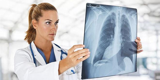 Tüdőszűrés Tóalmáson